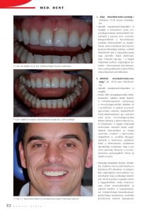 Cikk: A Smylist Professional mosolytervező szoftver helye és szerepe a mosolytervezés folyamatában és a pácienssel folytatott kommunikációban