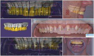 Dental Tribune-interjú (angol nyelven): An interview with Dr. Maria Csillag (Budapest) – the creator of Smylist®